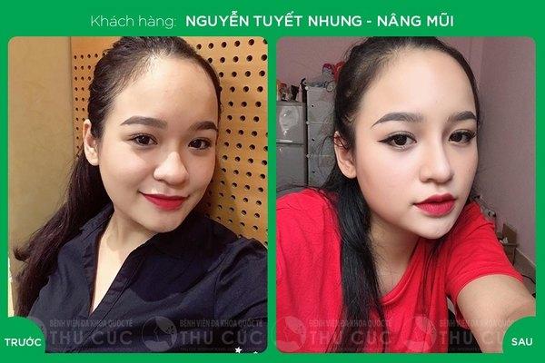 Sự thay đổi ở dáng mũi giúp chị em trở nên xinh đẹp, nổi bật hơn (Lưu ý: Kết quả tùy thuộc cơ địa mỗi người)