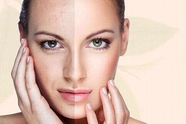 Các nguyên nhân lão hóa da xuất phát từ bên trong và bên ngoài