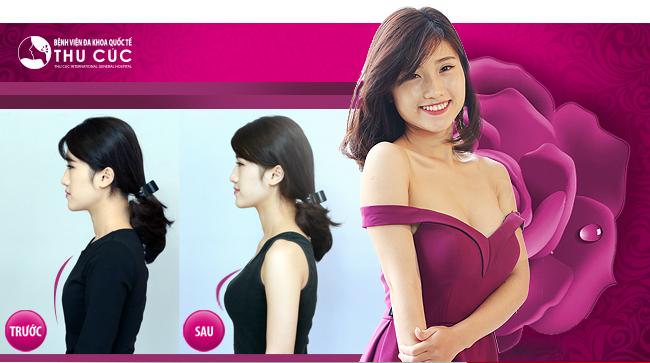 Nâng ngực nội soi tại Thu Cúc Sài Gòn có an toàn không?
