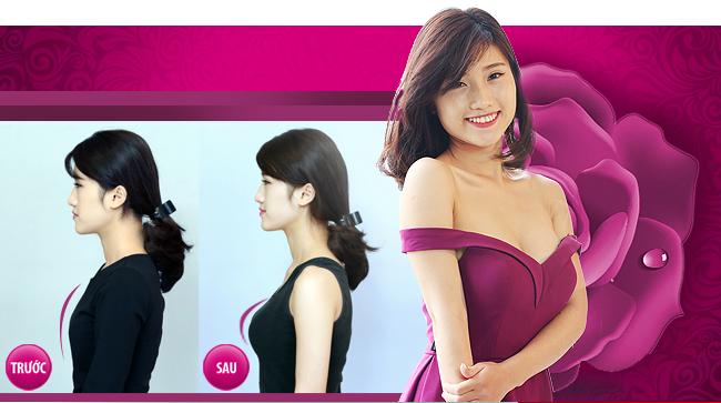 nâng ngực ở Thu Cúc Sài Gòn có tốt không?
