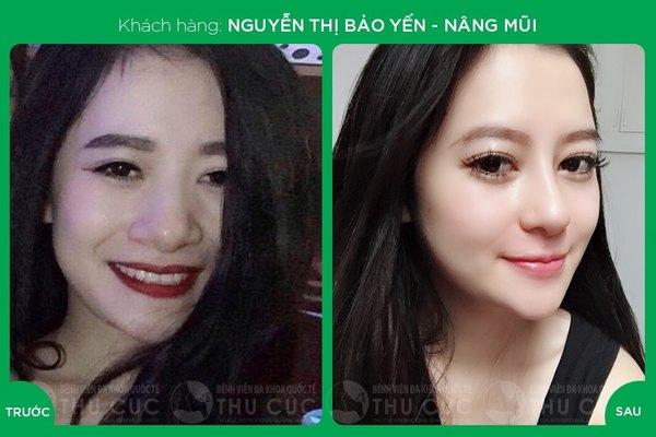 Một chút thay đổi ở dáng mũi đã giúp chị em xinh đẹp và nổi bật hơn hẳn (Lưu ý: Kết quả tùy thuộc cơ địa mỗi người)