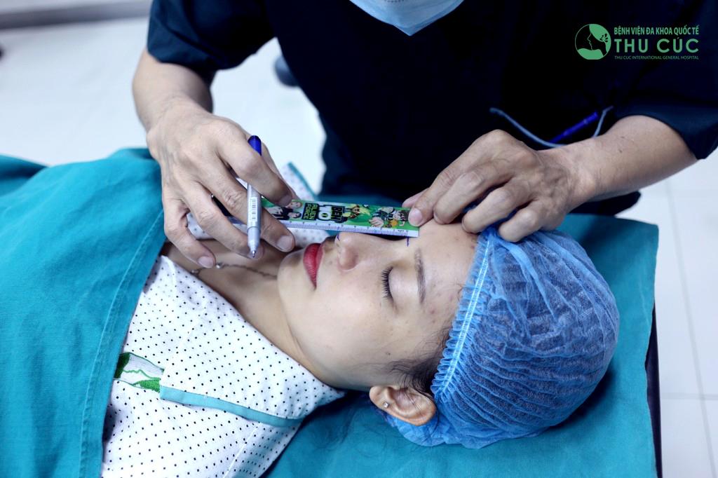 Bác sĩ thực hiện đo kẻ dáng mũi chuẩn xác để khách hàng có được chiếc mũi hoàn hảo nhất