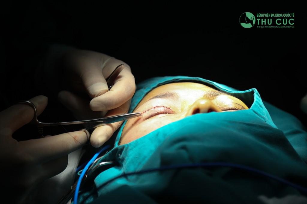 Tiểu phẫu cắt mí hạn chế tối đa xâm lấn, không gây lộ sẹo hay bất kỳ dấu vết thẩm mỹ nào
