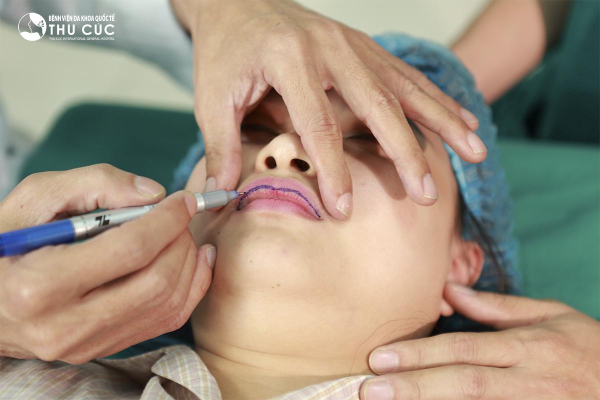 Bác sĩ đo vẽ dáng môi phù hợp