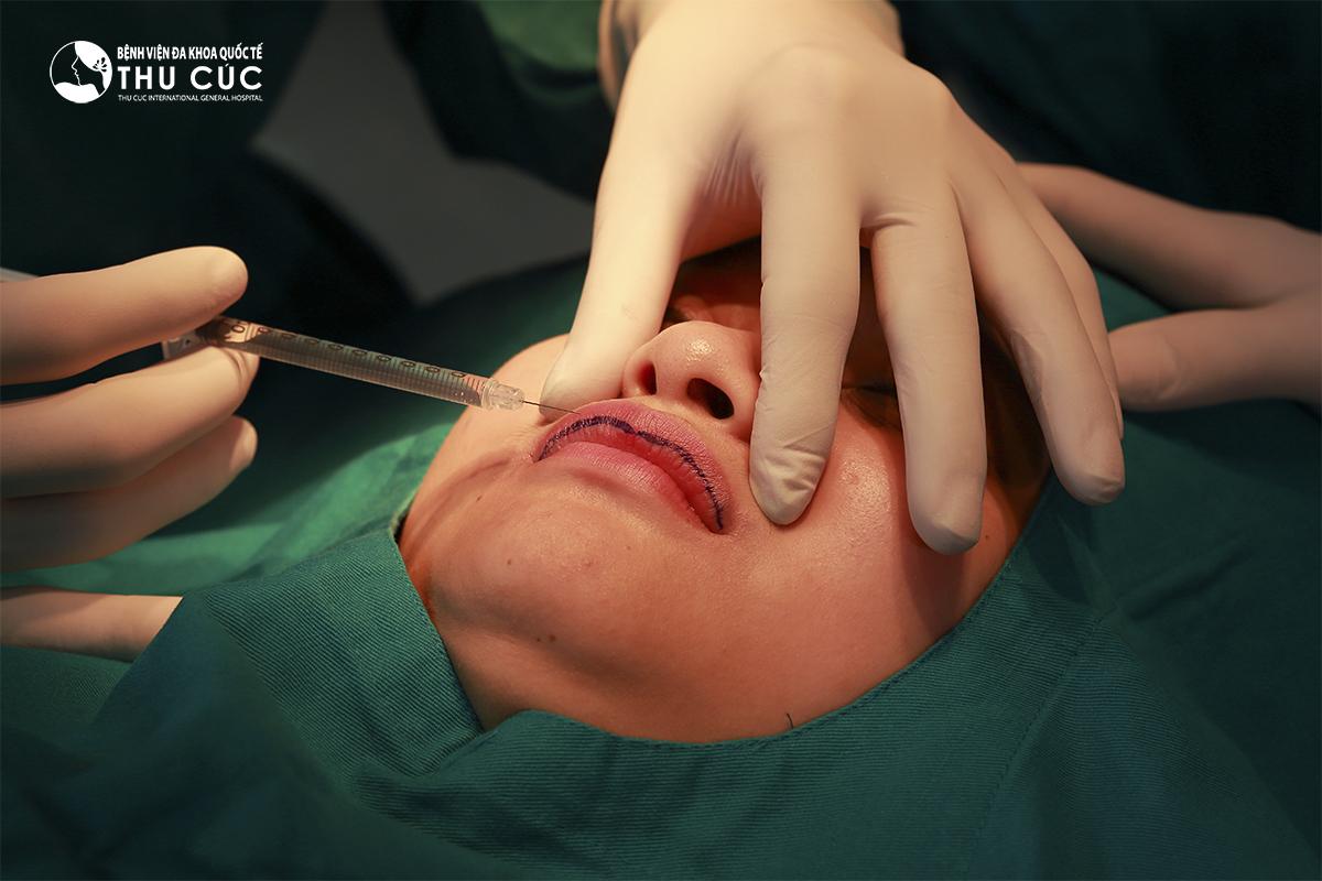Gây tê cục bộ vùng môi với liều lượng chuẩn xác để khách hàng cảm thấy thoải mái nhất trong quá trình phẫu thuật