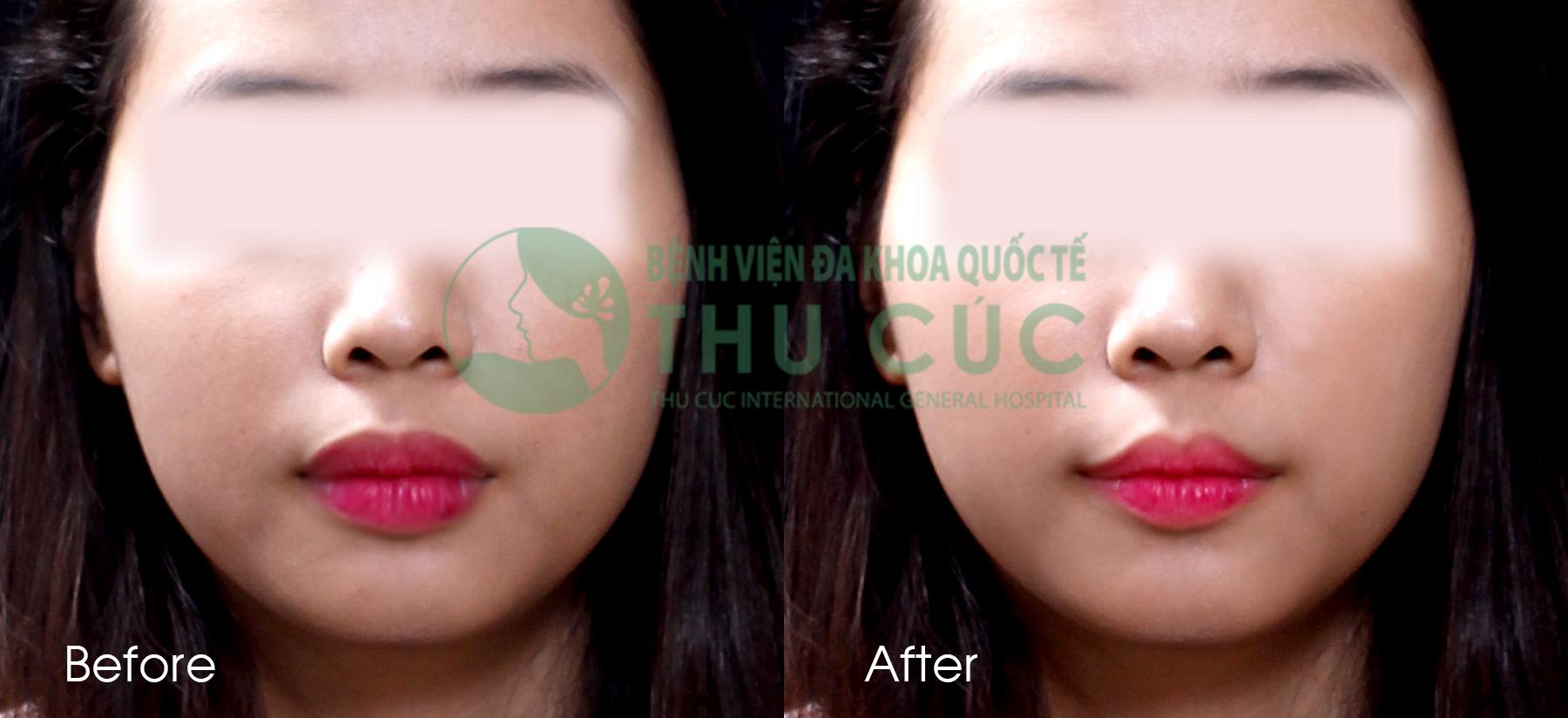 Kết quả khách hàng tạo môi trái tim tại Thu Cúc. Đôi môi đẹp tự nhiên, không lộ sẹo, không biến chứng, hài hòa với khuôn mặt.