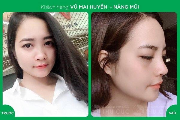 Dáng mũi Sline đẹp miễn chê của khách hàng sau khi nâng mũi Sline tại Thu Cúc Sài Gòn (Lưu ý: kết quả tùy thuộc cơ địa mỗi người)