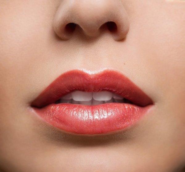 Sau phẫu thuật tạo hình môi trái tim, tùy thuộc cơ địa mỗi người môi sẽ lành lặn dần