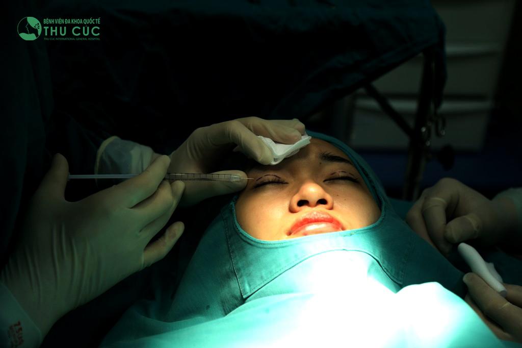 Vùng mắt được gây tê cục bộ để khách hàng cảm thấy thoải mái nhất trong quá trình phẫu thuật