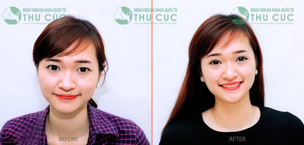 Hình ảnh khách hàng trước và sau nhấn mí Hàn Quốc tại Thu Cúc