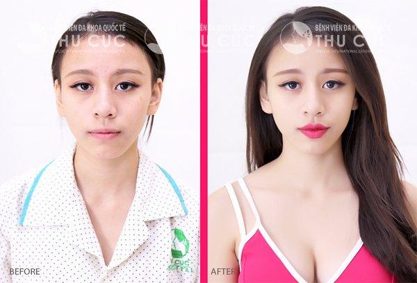 Đôi môi trái tim gợi cảm giúp chị em xinh đẹp và nổi bật hơn rất nhiều (Lưu ý: Kết quả tùy thuộc cơ địa mỗi người)