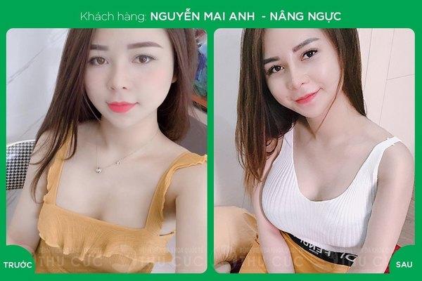 Thời gian làm nâng ngực nội soi ở Thu Cúc Sài Gòn