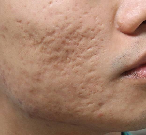 Sẹo lõm là những tổn thương sâu của viêm nang lông, thường do các mụn nang mủ lớn để lại