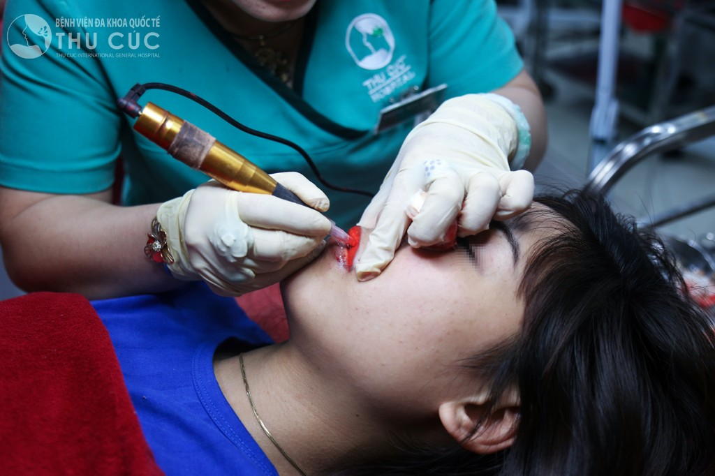 Bác sĩ phun xăm