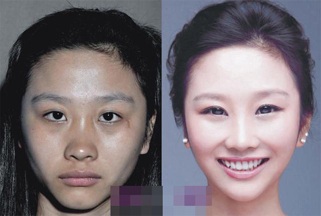 Trong thời gian ngắn, công nghệ nâng mũi không phẫu thuật sẽ mang lại cho bạn chiếc mũi đẹp tự nhiên