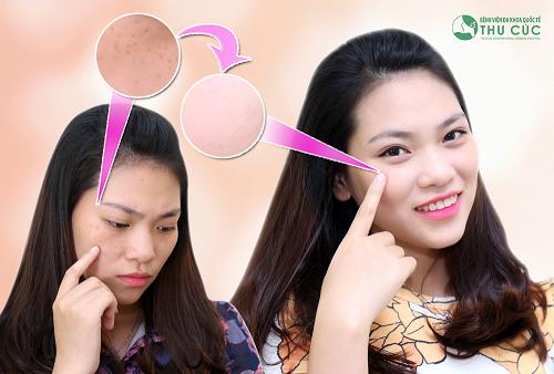 Thu Hà – Bà mẹ 9x xinh đẹp hơn sau khi trị dứt tàn nhang