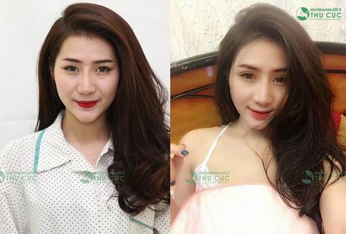 Có thể nhận thấy rõ sự khác biệt đến từ đôi mắt của cô nàng 27 tuổi trước và sau khi thực hiện phẫu thuật thẩm mỹ.