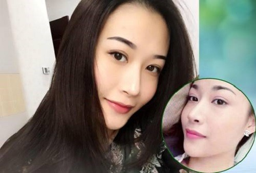 Diện mạo mới của Diệu Linh (24 tuổi) sau nâng mũi S line tại Thu Cúc nhận được nhiều sự khen ngợi của bạn bè người thân