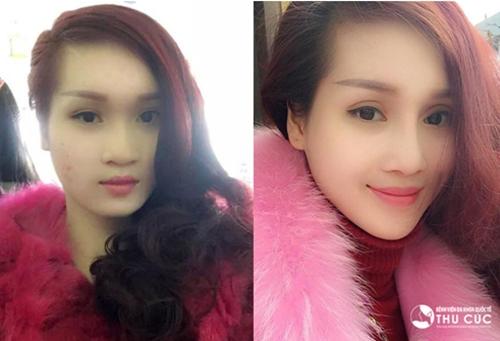 Hình ảnh trước và sau khi thẩm mỹ của Thùy Dương.