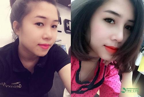 """Và sau khi thực hiện phẫu thuật nâng mũi S-line tại Thu Cúc Sài Gòn, nhan sắc của cô chủ nhỏ như được """"lột xác"""" ngoạn mục."""