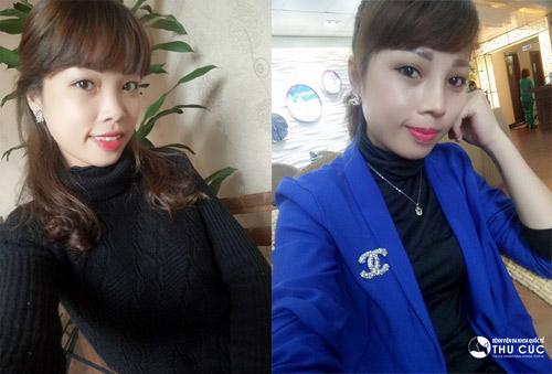 Diện mạo xinh xắn của Thu Trang sau khi nâng mũi S line 1 tuần