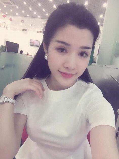 Cùng theo xu hướng với giới trẻ, tín đồ làm đẹp Thanh Thủy (SN 1992) đăng ký bấm mí Hàn Quốc lâu dài kết hợp phẫu thuật môi trái tim tại Thu Cúc và  hài lòng với diện mạo mới của mình.