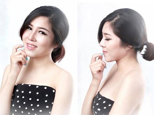 """Là chủ một cửa hàng nail tại Tuyên Quang, Phi Nga (25 tuổi) lựa chọn phẫu thuật nâng mũi với mong muốn sẽ thuận lợi hơn trong công việc. Phi Nga cho biết dáng mũi mới không chỉ đẹp mà còn giúp cô """"đổi vận"""" khiến công việc kinh doanh tốt hơn rất nhiều."""