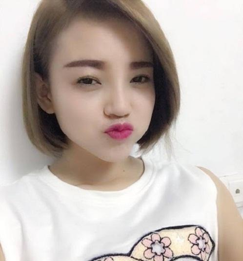 Vốn hâm mộ nhan sắc hoàn hảo của các thần tượng Hàn, Nguyễn Thị An (22 tuổi) đã lựa chọn phương pháp nâng mũi Hàn Quốc tại Thu Cúc. Dáng mũi cao, thanh tú khiến khuôn mặt cô nàng trông xinh đẹp không thua kém các hotgirl xứ sở Kim Chi.
