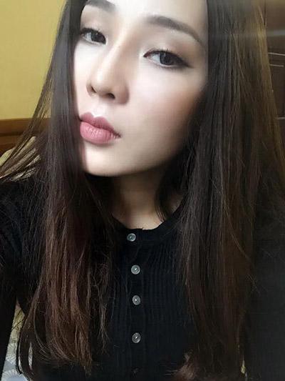 Nâng mũi S line tạo dáng mũi đẹp, có độ cong tự nhiên với đầu mũi cao dài, phù hợp với khuôn mặt nhỏ nhắn của Thanh Mai.
