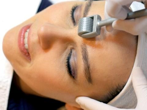 Việc kết hợp lăn vi kim và đưa sản phẩm tế bào gốc P'cell vào trong da giúp sửa chữa, làm mới, tái tạo da hoàn hảo