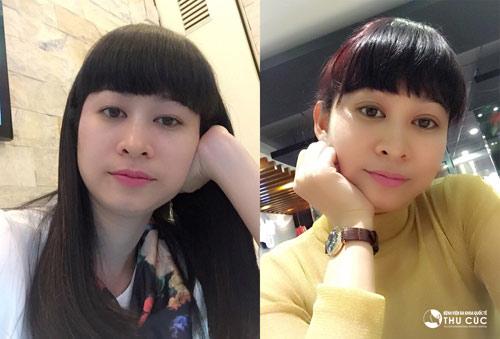 Khuôn mặt trẻ trung, xinh đẹp của doanh nhân Thanh Hà sau thẩm mỹ mắt khiến nhiều người bất ngờ.
