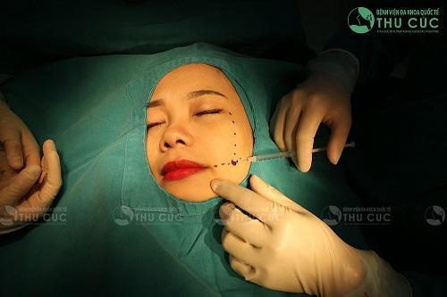Quy trình tạo má lúm an toàn, nhẹ nhàng và không để lại sẹo thẩm mỹ