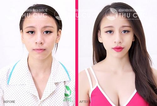 Kết quả trước và sau thực hiện phẫu thuật tạo môi trái tim Thu Cúc