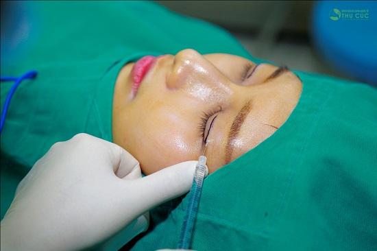 Trước khi phẫu thuật, bác sĩ chuyên khoa gây tê tiến hành gây tê cục bộ vùng mắt vùng mắt. Đây là bước quan trọng bởi gây tê cần liều lượng thích hợp để đảm bảo được cả sức khỏe cũng như cảm giác dễ chịu trong quá trình phẫu thuật.