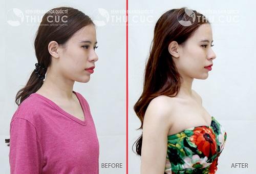 Sự thay đổi trước và sau khi thực hiện nâng ngực nội soi tại Thu Cúc
