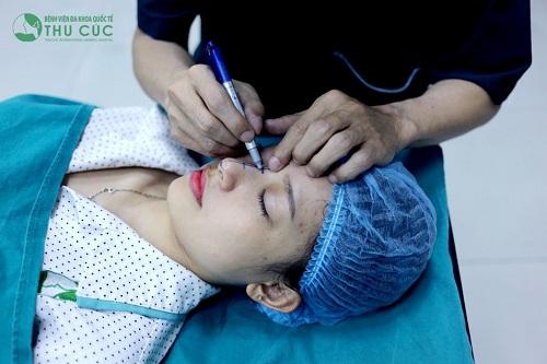 Bác sĩ đo vẽ để xác định hình dáng và kích thước mũi sau khi nâng sao cho hài hòa với đường nét khuôn mặt.