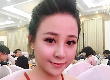 """9x Bích Ngọc lột xác thành """"hot girl"""" sau nâng mũi"""