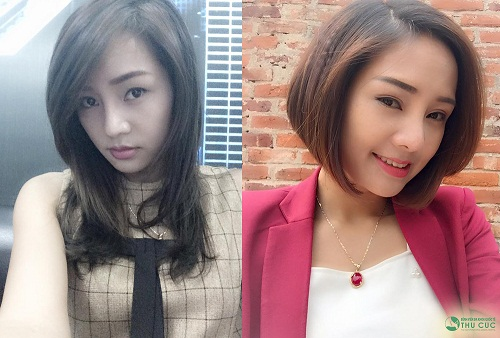 Mai Hương trước và sau khi phẫu thuật cắt mí mắt ((Lưu ý: Kết quả có thể khác nhau tuỳ cơ địa của từng người )