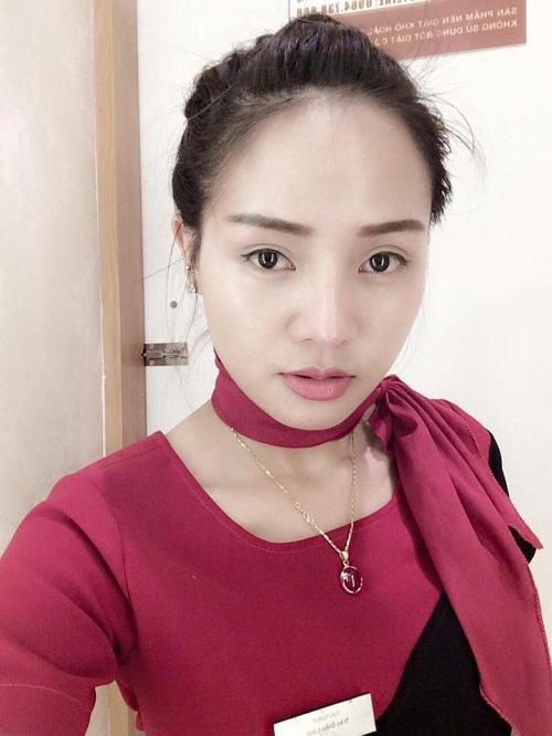Sau khi cắt mí mắt, không những đôi mắt to tròn, long lanh hơn mà các đường nét trên khuôn mặt Mai Hương cũng hài hòa hơn.