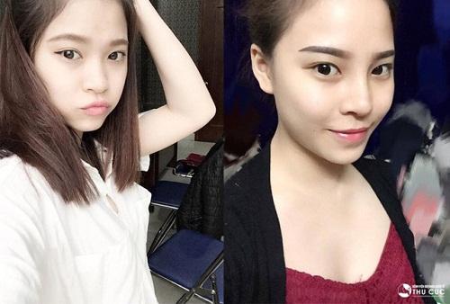 Sự khác biệt sau phẫu thuật thẩm mỹ làm nên thần thái của một cô gái xinh đẹp, mạnh mẽ ở Thu Hương. (Lưu ý: Kết quả thẩm mỹ có thể khác nhau tùy theo cơ địa từng người).