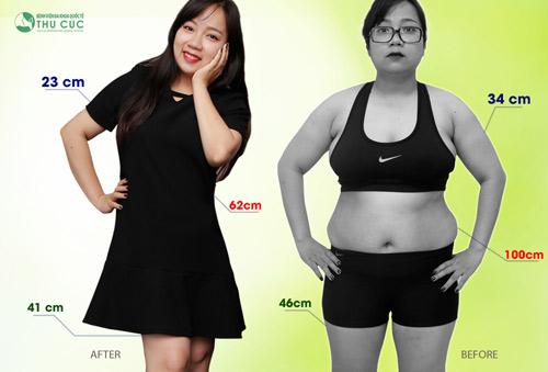"""""""Dương Panda"""" ngày nào giờ chỉ còn 50 kg với các chỉ số trên cơ thể hài hòa, cân đối và thon gọn. Chắc hẳn đây là ước mơ của không ít các cô gái. (Lưu ý: Kết quả thẩm mỹ có thể khác nhau tùy thuộc cơ địa từng người)"""