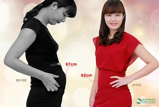 Chị Thanh Tâm đã giảm nhanh được 25cm vòng eo. (Lưu ý: Kết quả thẩm mỹ có thể khác nhau tùy theo cơ địa từng người)