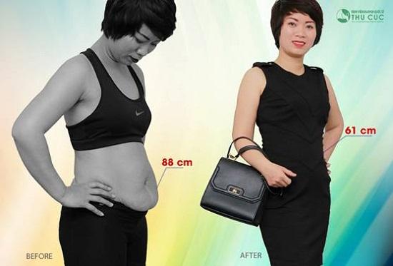 Sau thực hiện, vòng eo 88 cm xuống 61 cm, giờ chị Phương tự tin diện các trang phục yêu thích. (Lưu ý: kết quả còn tùy thuộc vào cơ địa của mỗi người)