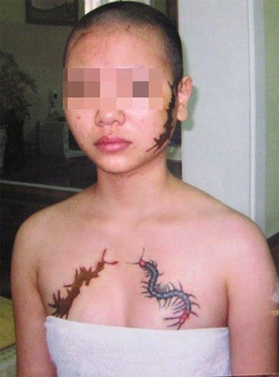 Cô gái xinh đẹp bị bà chủ đánh ghen, xăm hình rết lên mặt và ngực