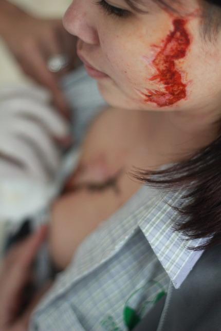 Vết xăm lớn của Giang khi đến Bệnh viện Thu Cúc điều trị