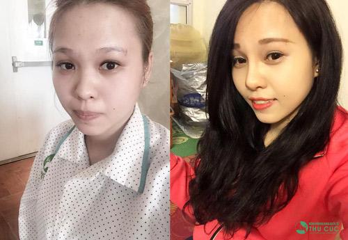 """Hình ảnh trước và sau khi thẩm mỹ khi trải qua phẫu thuật nâng mũi của Thanh Thủy khiến nhiều người ngạc nhiên vì sự """"lột xác"""" này. (Lưu ý: Kết quả có thể khác nhau tuỳ cơ địa của mỗi người.)"""