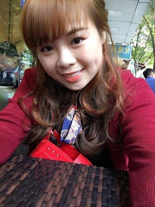 Nụ cười xinh hút hồn của cô bạn Phương Dung sau thẩm mỹ tạo má lúm tại Thu Cúc.