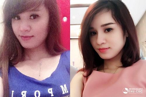Nếu như trước đây, chiếc mũi là nhược điểm lớn trên khuôn mặt Nguyễn Giang thì sau khi thẩm mỹ, dáng mũi cao chính là điểm nhấn giúp gương mặt cô xinh đẹp và thời thượng hơn rất nhiều.