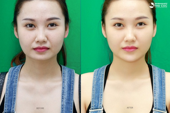 """Sự thay đổi kỳ diệu của chiếc cằm thon dài, """"chuẩn hot girl"""" chỉ trong 15 phút của Quỳnh Chi tại Thu Cúc. (Lưu ý: Hiệu quả thẩm mỹ có thể khác nhau tùy cơ địa từng người)"""