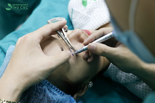 Tùy theo hình dáng và mong muốn thẩm mỹ của từng khách hàng, bác sĩ chuyên khoa sẽ đo vẽ cung mí hài hòa khuôn mặt và xác định 3-5 điểm bấm mí trên mi mắt trên